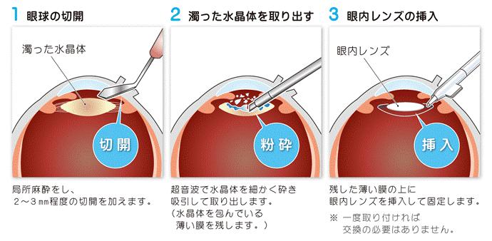 白内障手術の流れ
